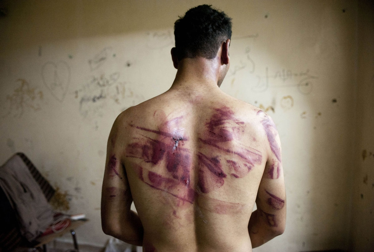 A Syrian man shows marks of torture on his back, after he was released from regime forces, in the Bustan Pasha neighbourhood of Syria's northern city of Aleppo on August 23, 2012.