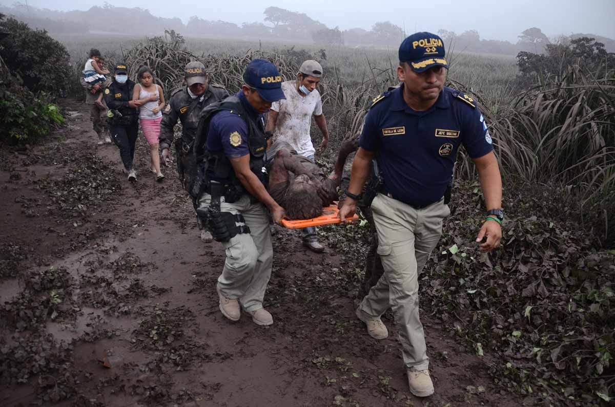 A officer police carries a man with a wounded after the eruption of the Fuego Volcano in  El Rodeo village, Escuintla department, 35 km south of Guatemala City on June 3, 2018.