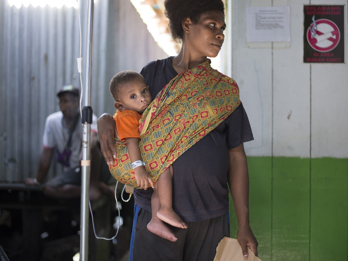 A Papuan woman carries her child to a local hospital handling measles and malnutrition patients in Agats, the capital of Asmat district in Indonesia's easternmost Papua province, on January 25, 2018.