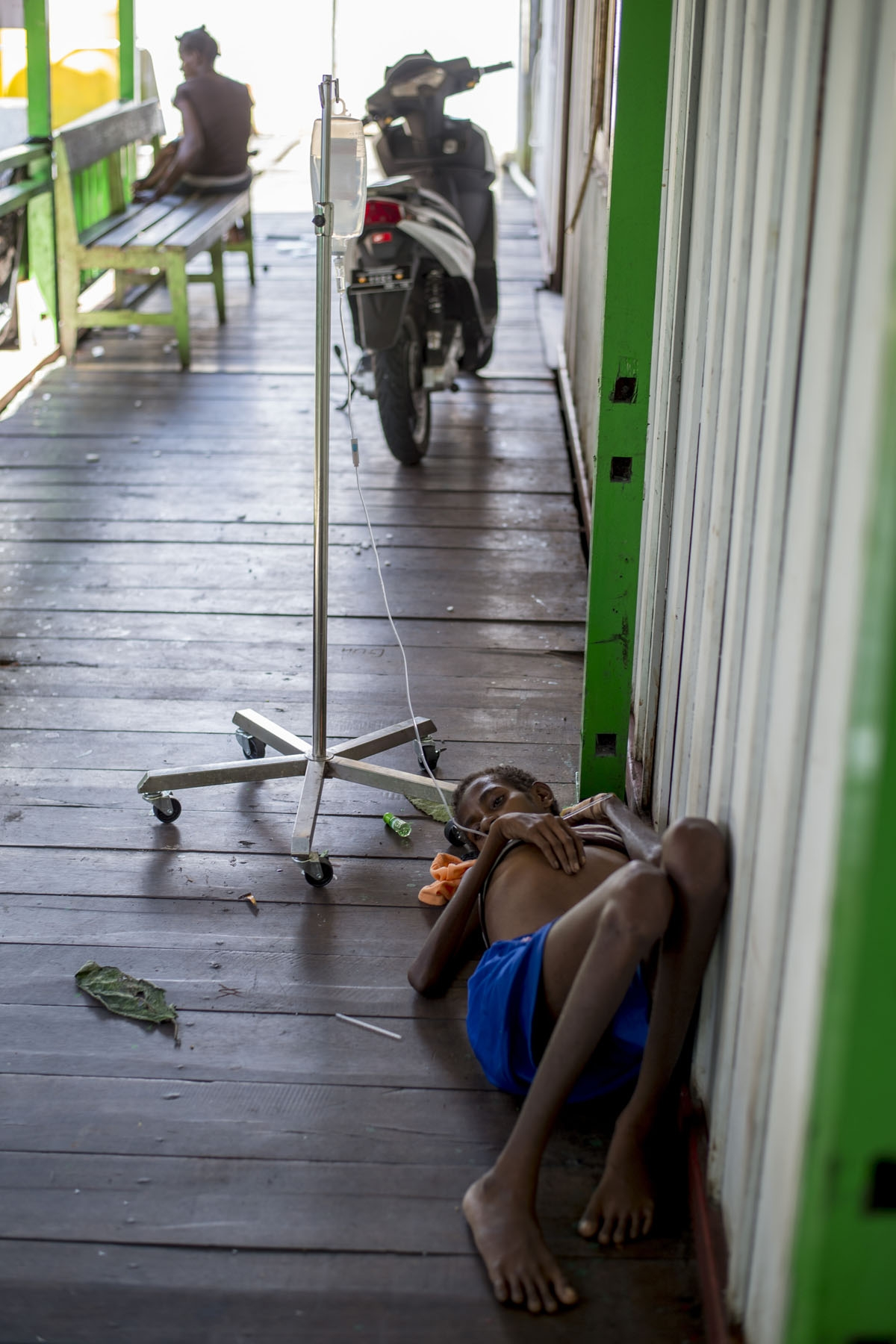 A Papuan girl on a drip lies on the bare floor of a local hospital handling measles and malnutrition patients in Agats, the capital of Asmat district in Indonesia's easternmost Papua province, on January 25, 2018.