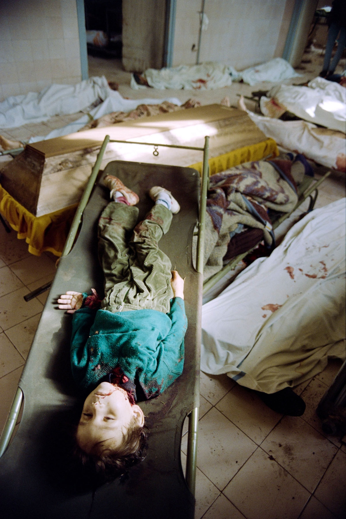 The body of a child killed by shelling lies on a stretcher upon a coffin and other bodies on June 07, 1992 in the Sarajevo mortuary hospital, full of dead people who can't be burried because families are afraid of bombing and snipers during funerals.