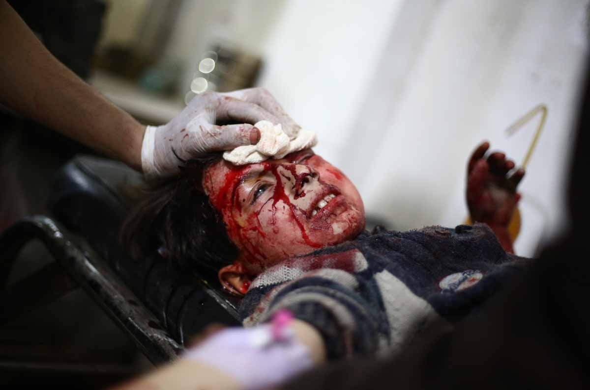 A wounded Syrian child receives medical treatment at a make-shift clinic in the rebel-held area of Douma, east of the capital Damascus, following reported air strikes by government forces on March 15, 2015.