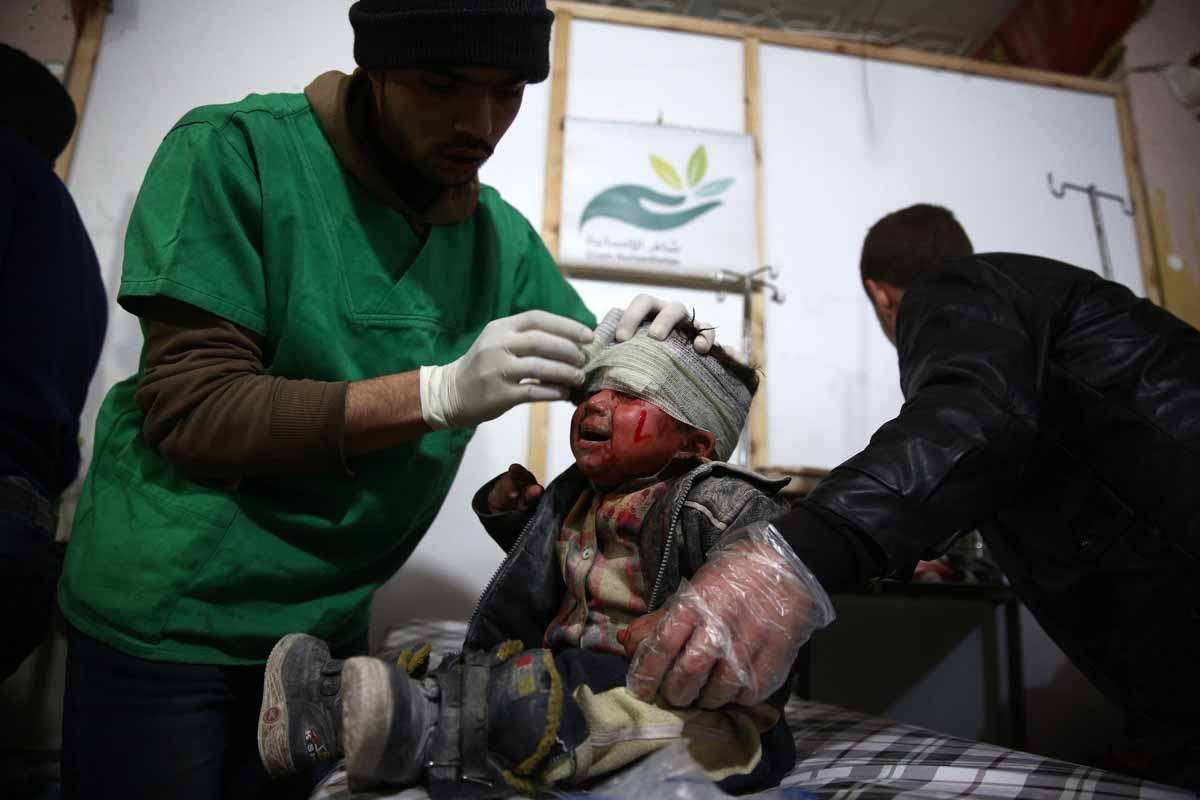 A Syrian child receives treatment at a make-shift hospital, following a reported airstrike by Syrian government forces on the rebel-held town of Douma, on the eastern edges of the Syrian capital Damascus, on December 30, 2015.